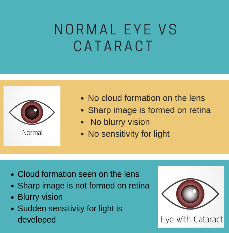 Difference between normal eye and cataract